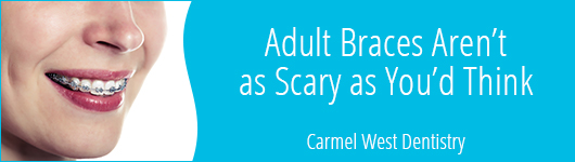 adult braces aren't as scary as you'd think