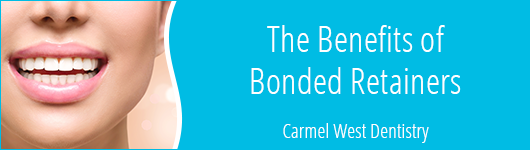 the benefits of bonded retainers