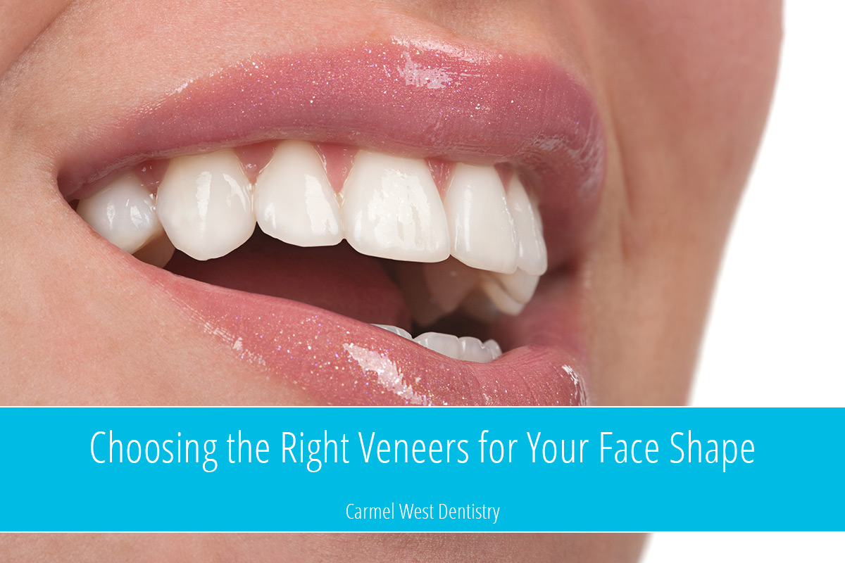 Choosing the right veneers for your face shape