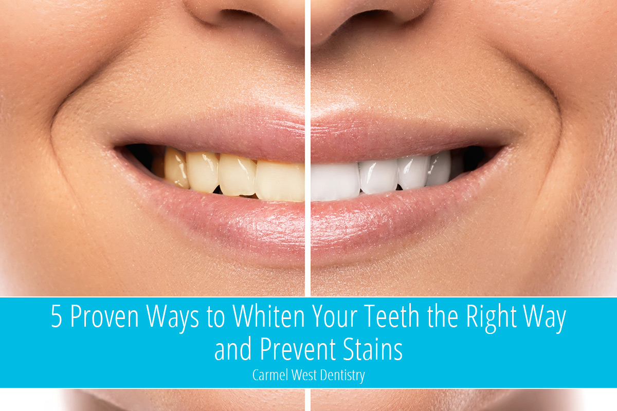 5 Proven Ways to Whiten Your Teeth the Right Way and Prevent Stains
